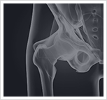 Hip Injury Image