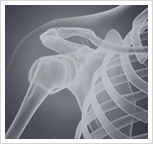 Shoulder Injury Image